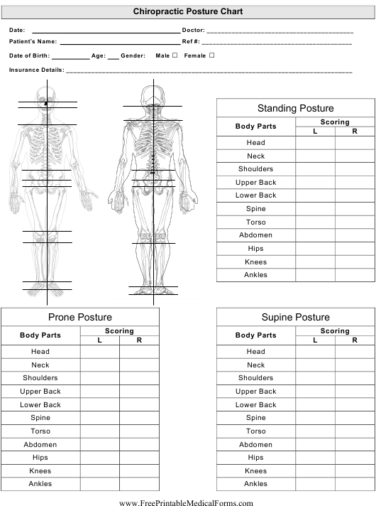 """""""Chiropractor Posture Chart Template"""" Download Pdf"""